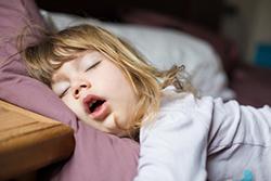 幼児期の口呼吸