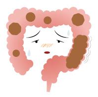 弛緩性便秘の腸