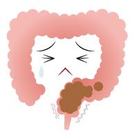 直腸性便秘の腸