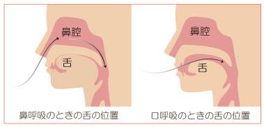 正しい舌の位置と口呼吸の時の舌の位置